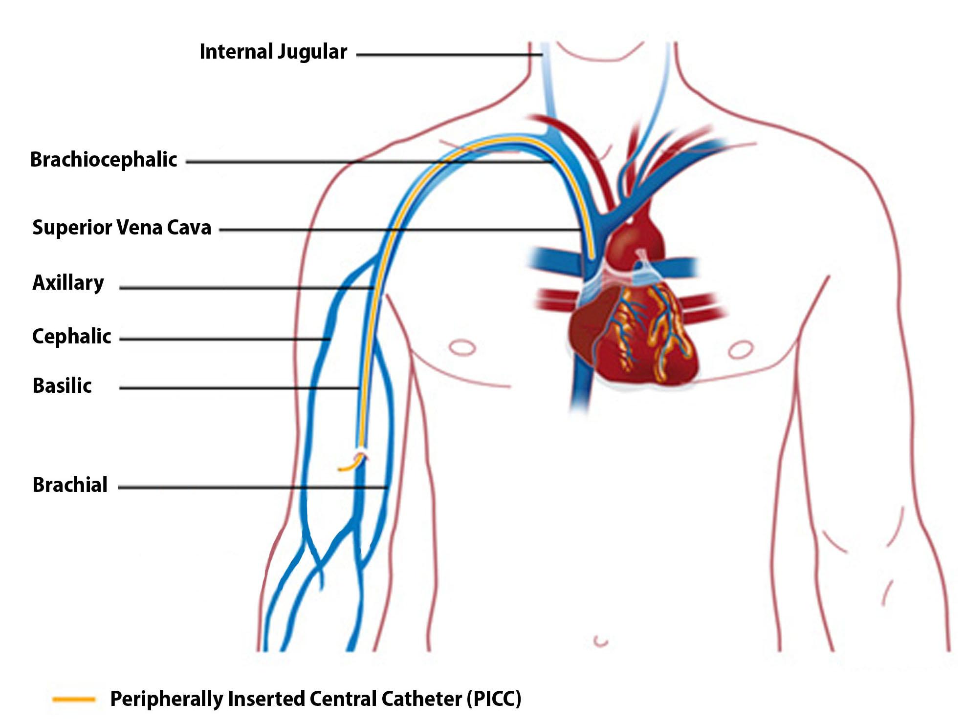 umstöpseln von sbk katheter
